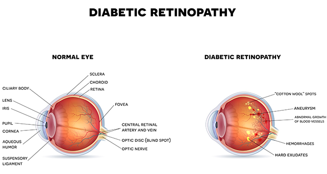 Diabetic Retinopathy diagram